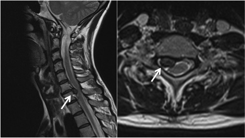 A disc protrusion (white arrows) at C6/7 causing nerve compression.