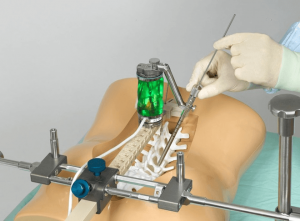 The Renaissance system uses a robotic guidance device mounted to the patients spine to deliver screws along a pre-planned trajectory.