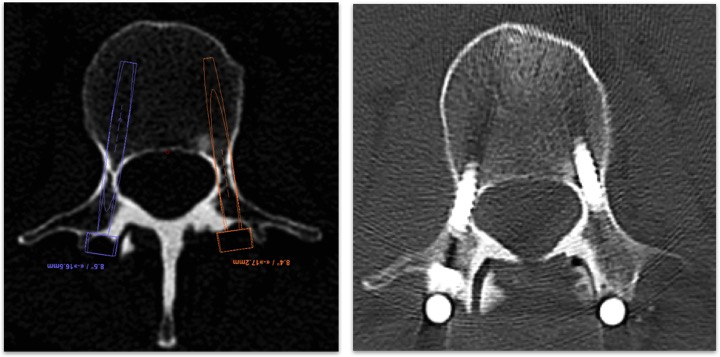 The optimal screw placement is planned on a pre-operative CT (left) and the Renaissance system delivers screw trajectories based on this plan.